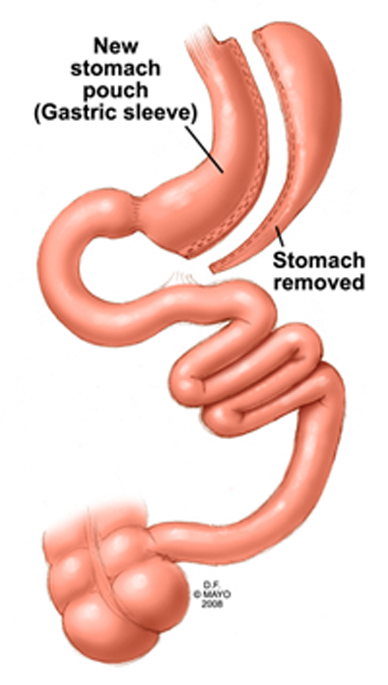 sleeve-gastrectomy-2col